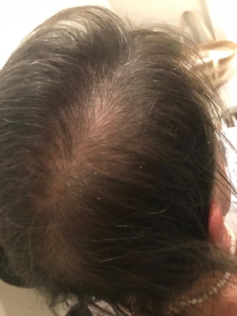 Hair Restoration Gloucestershire