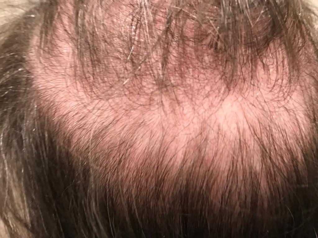 Hair loss treatments Gloucestershire