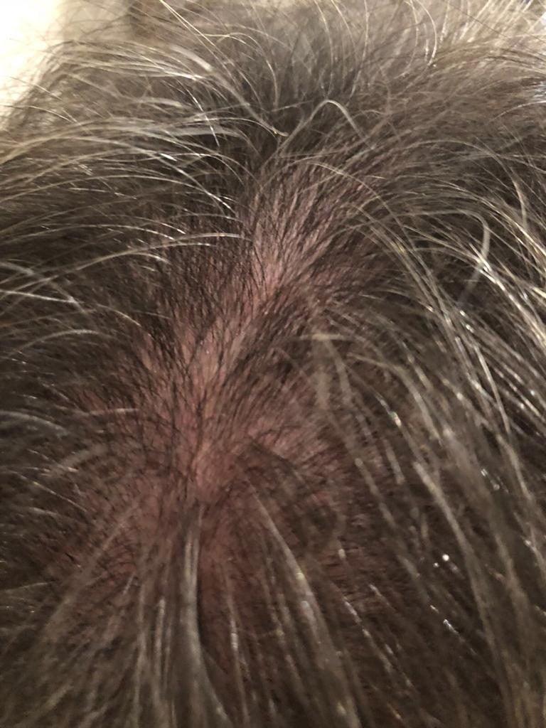 Hair Growth Treatments Gloucestershire