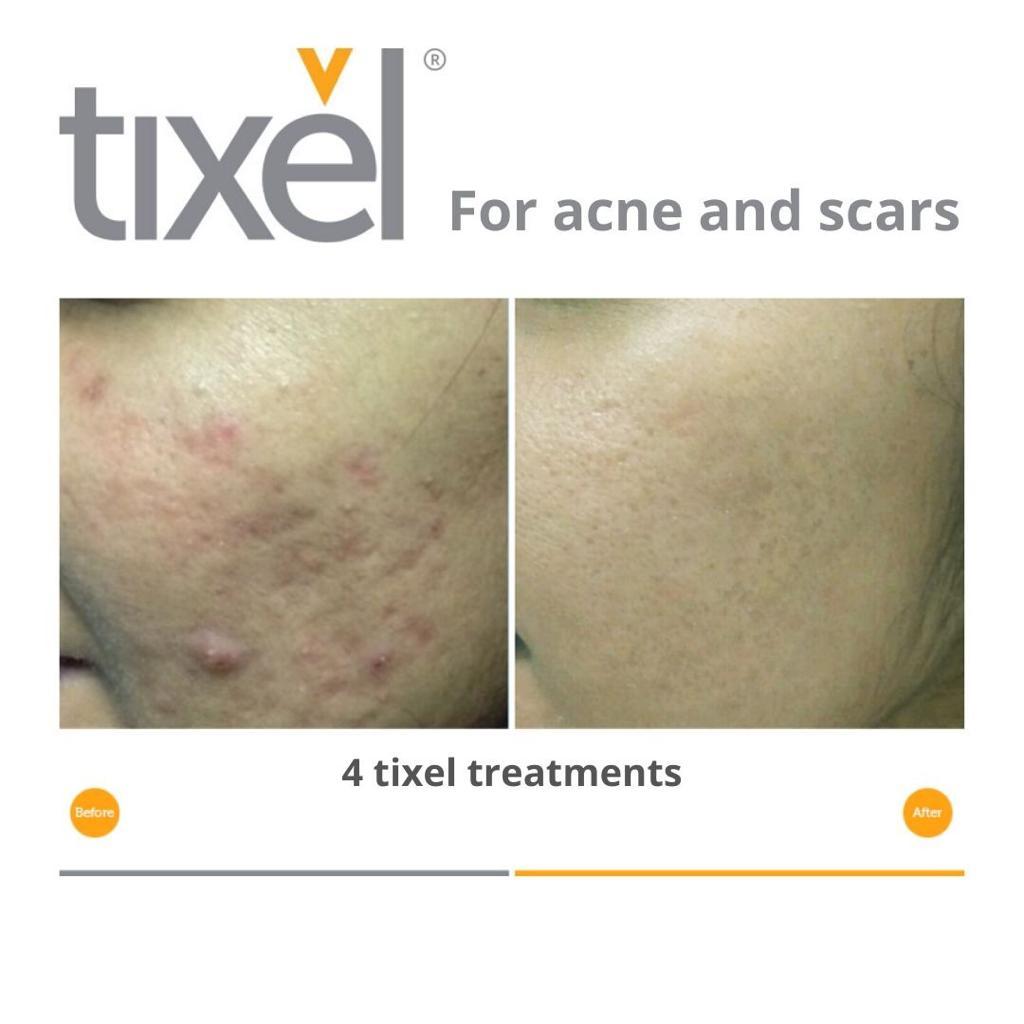 Tixel Acne Scars