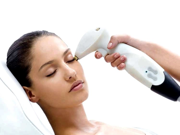 Face Skin Tightening with Radiofrequency